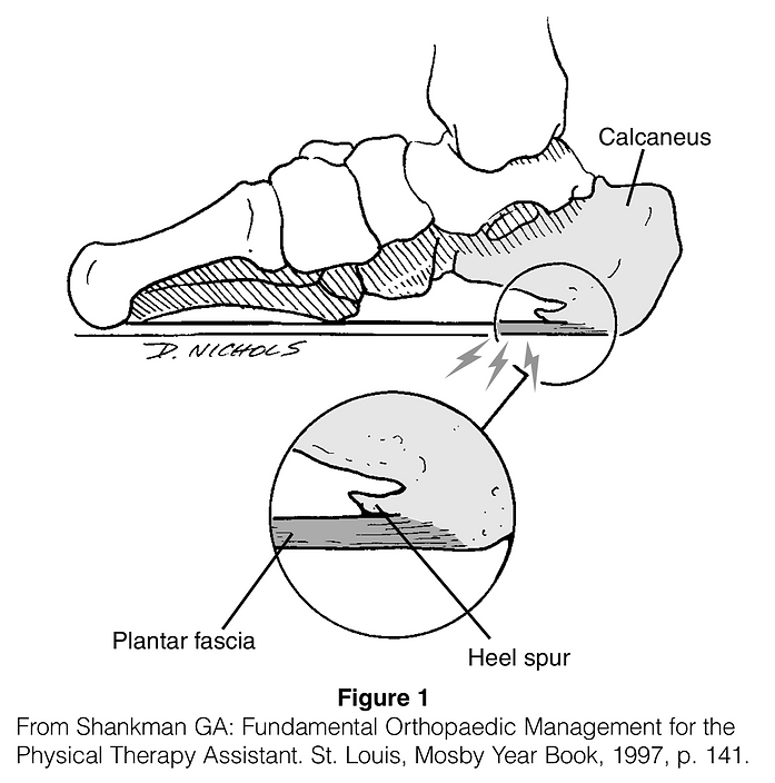 Plantar Fascitis (Heel Spur Syndrome).pn