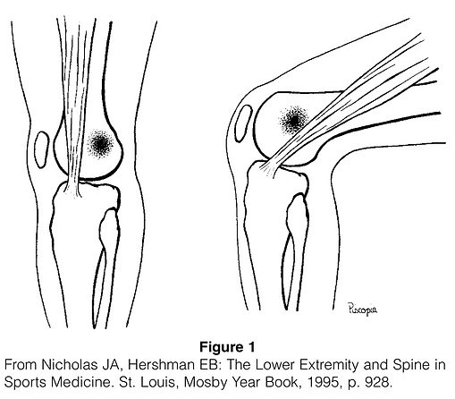 Iliotibial Band Syndrome.png