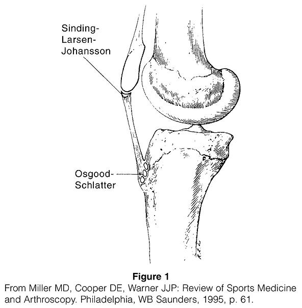 Osgood-Schlatter Disease.png