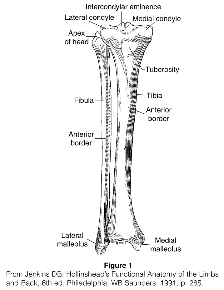 Fibular Fracture.png