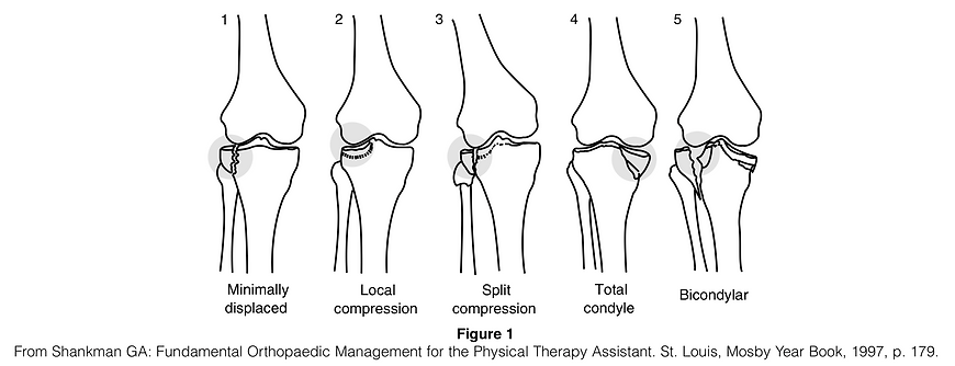 Tibial Plateau Fracture.png
