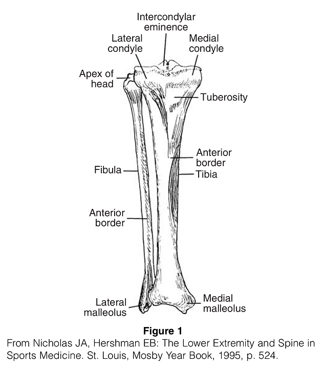 Tibial Shaft Fracture.png