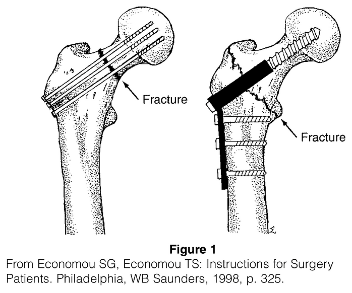 Hip Fracture.png