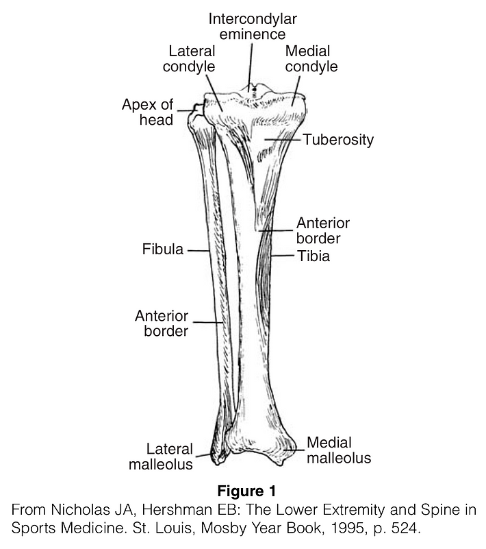 Tibial Stress Fracture.png