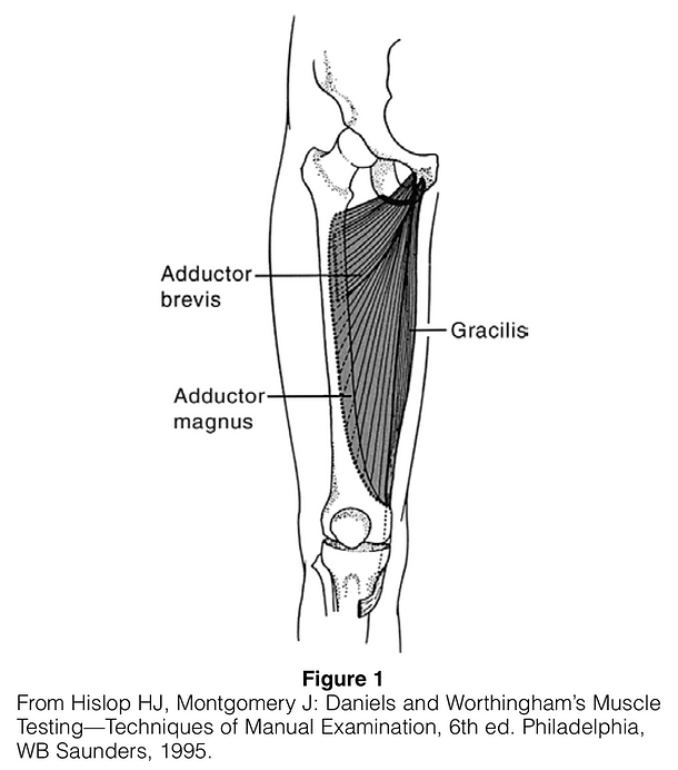 Figure 1 Adduction Muscle Strain.png
