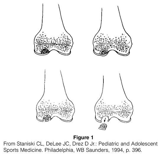 OSTEOCHONDRITIS DISSECANS.png