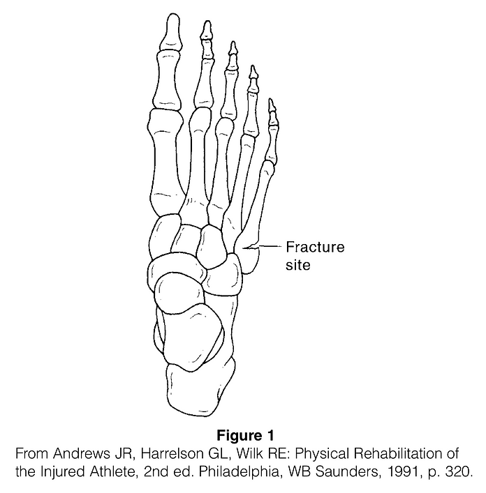 Metatarsal Fracture.png