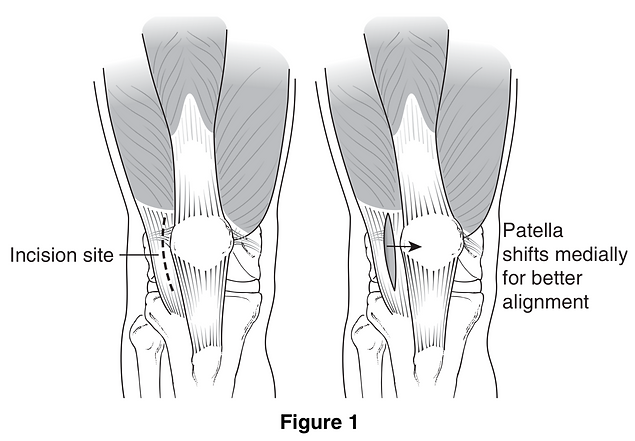 Patellar Dislocation and Subluxation, Su