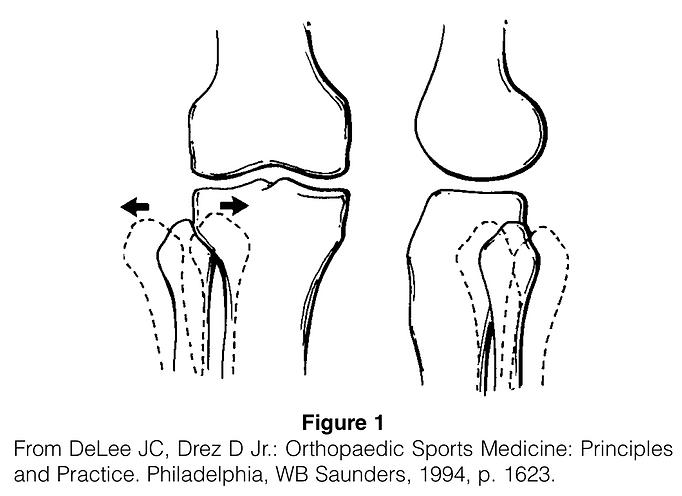 Proximal Tibiofibular Joint Dislocation.