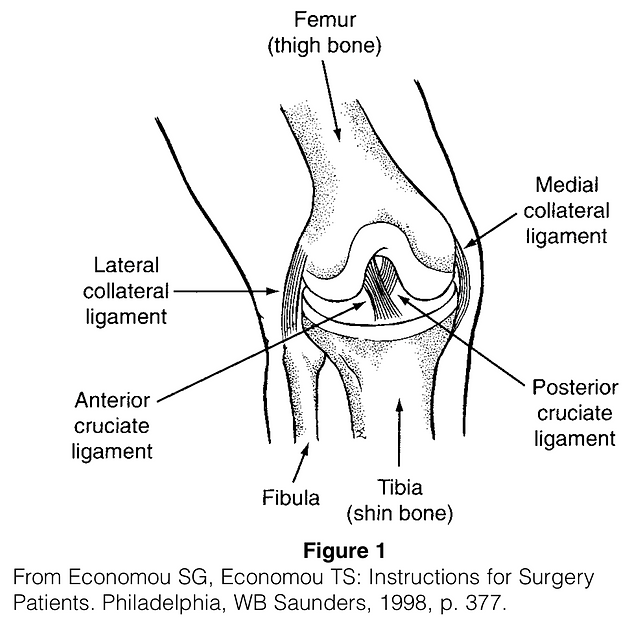Posterior Cruciate Ligament Tear.png