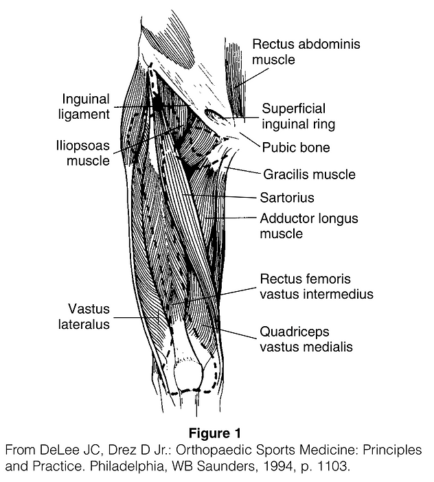 Quadriceps Tendon Tear _ Disruption.png