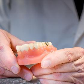 Dentures in Santa Fe