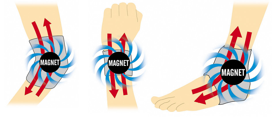 magnetic_braces.jpg