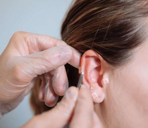 acupuntura-1.jpg