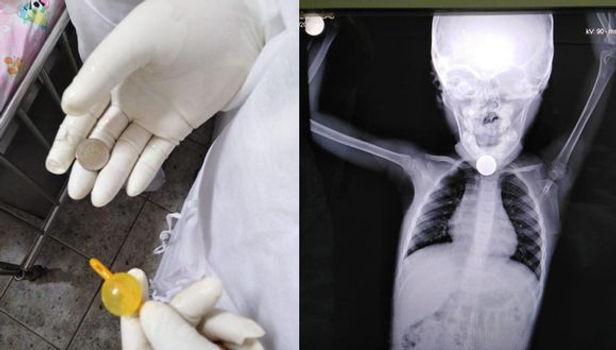Piura: Niña de 3 años con Covid-19 se salva de morir luego de atragantarse con una moneda