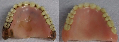 smilecrafters-denture-lab-staffordshire-denture-cleaning-services-before-after_edited_edited.jpg
