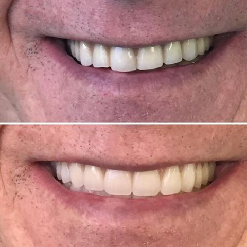 Before and After Complete Dentures