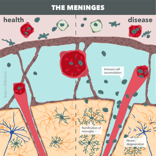 Illustration of the meninges in health and disease for the website of Elga de Vries lab.