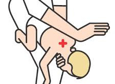 Infant Choking – Know It!