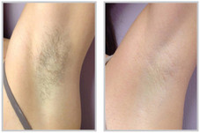 laser_hair_removal_before_and_after_910x