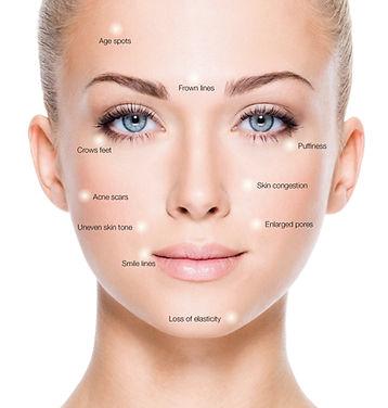 Treatable Skin Concerns.jpg