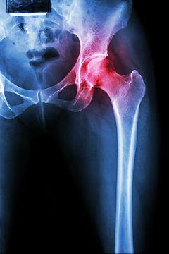 xray of hip pain