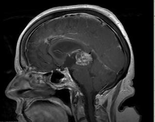 Bruce - pineal tumor.png