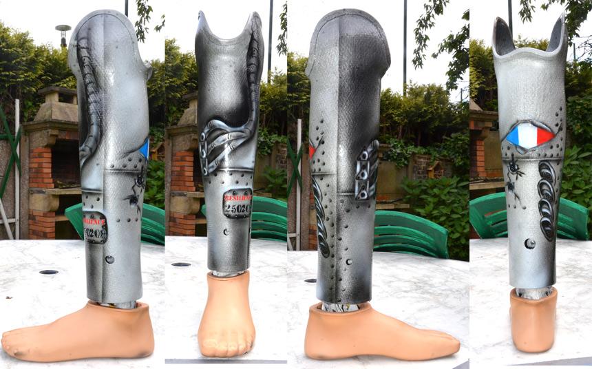 prothèse personnalisée