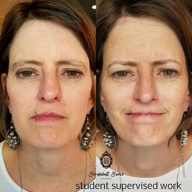 Check out this before and after done by