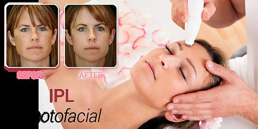 ewc_web_laser_treatments_ipl-photofacial