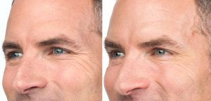 botox_side-by-side-results1-crc490850361