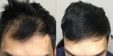 prp-for-hair-before-after-3.jpg.webp