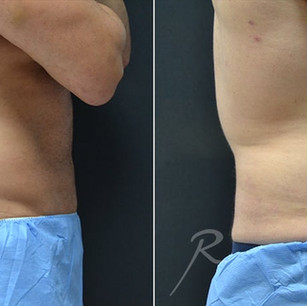 coolsculpting-for-men-before-and-after-t