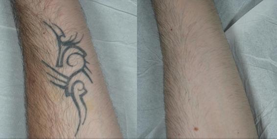 tattoo-figure2.png