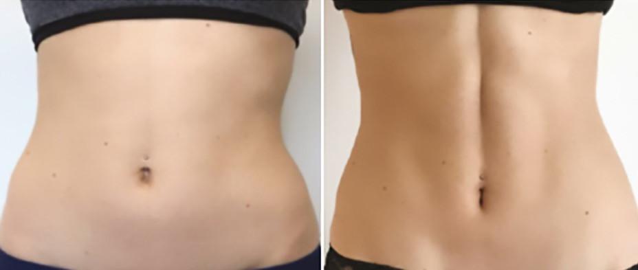 emsulpt-before-after-abdomen-female-1_ed