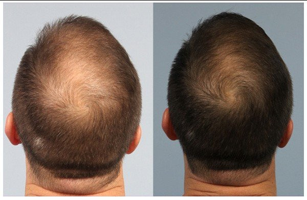 PRP-Before-and-After-Hair-Treatments-Ima