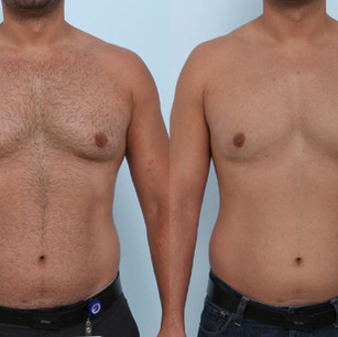 patient-804-coolsculpting-before-after-1