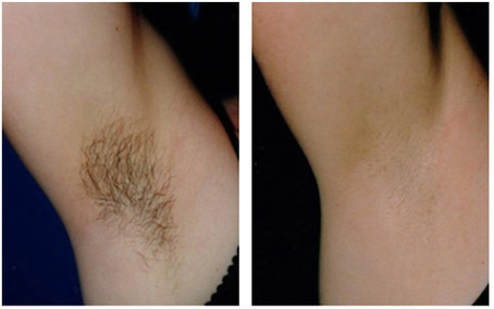 Laser-hair-removal-before-and-after-2.jp