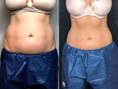 coolsculpting-before-and-after-the-medsp
