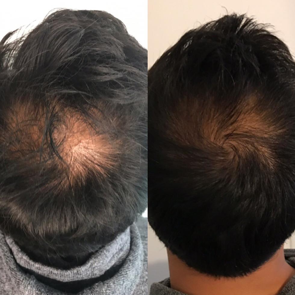 platelet-rich-plasma-prp-hair-restoratio