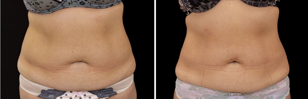 emsculpt_before_and_after_bodymorphmd_11