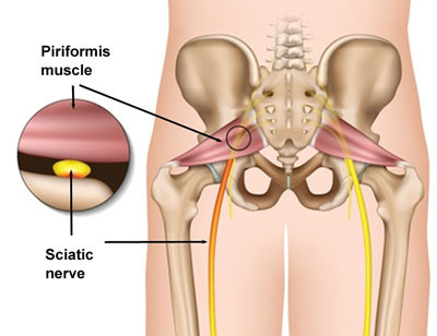 Note how the sciatic nerve runs right under the piriformis muscle