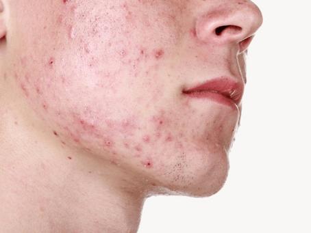 El acné es una enfermedad Occidental. Causas y soluciones que la medicina convencional no le dirá.