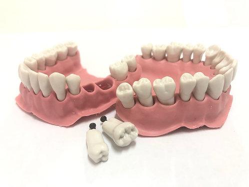 Комплект зубов (турбина) AG-3 c десной