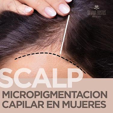 scalp mujeres.jpg