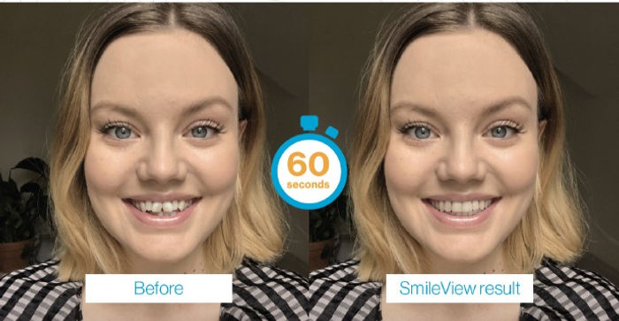 SmileView_edited.jpg