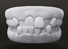 Teeth style - Cross bite
