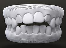 Teeth Style - Open bite
