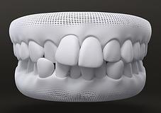 Teeth style - Crowded