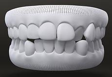 Generally Straighter Teeth